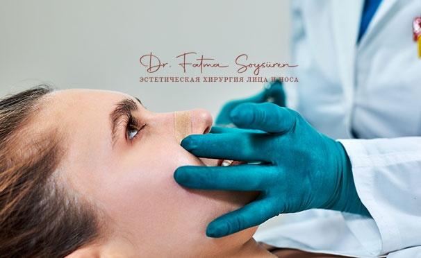 Скидка на Эстетическая ринопластика в клинике Dr. Fatma Soysüren в Турции. Скидка 64%