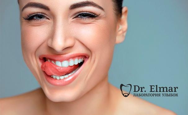 Скидка на Гигиена полости рта, отбеливание, лечение и реставрация зубов в клинике Dr. Elmar. Скидка до 86%