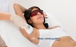 Лазерная эпиляция лица и тела
