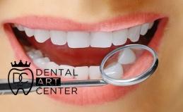 УЗ-чистка и отбеливание зубов