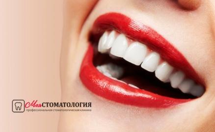 Абонемент на 1 год в стоматологию