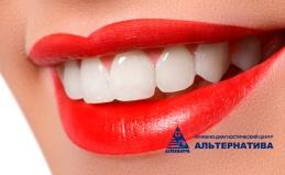 Отбеливание зубов, чистка Air Flow