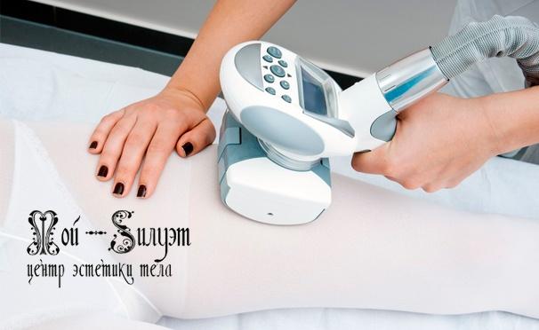 Скидка на LPG-массаж всего тела с обертыванием, криолиполиз, кавитация, электролиполиз, прессотерапия, RF-лифтинг, миостимуляция, лазерный липолиз и не только в центрах эстетики тела «Мой силуэт». Скидка до 95%