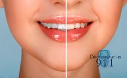 Чистка, лечение зубов