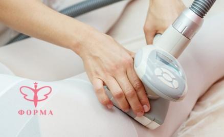 LPG-массаж, кавитация и термотерапия