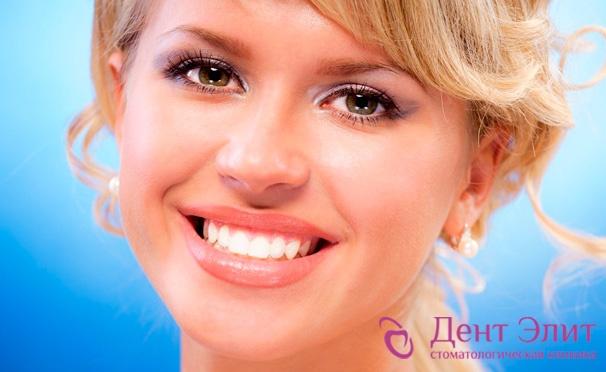 Скидка на Установка имплантата Alpha Dent, УЗ-чистка зубов, Air Flow, покрытие фторлаком в клинике «Дент Элит». Скидка до 88%