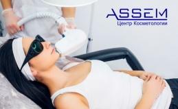 Лазерная эпиляция в салоне Assem