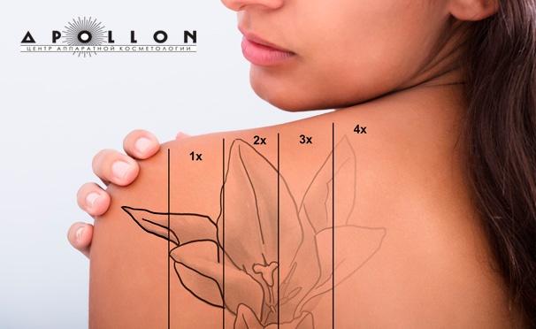 Скидка на Скидка до 85% на лазерное удаление татуировки и перманентного макияжа американским лазером TriMatrixx в центре аппаратной косметологии Apollon