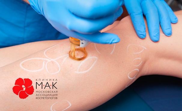 Скидка на Удаление сосудистых патологий на лице и теле неодимовым лазером в клинике «МАК». Скидка до 80%