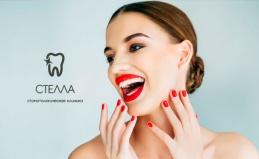 УЗ-чистка зубов в клинике «Стелла»