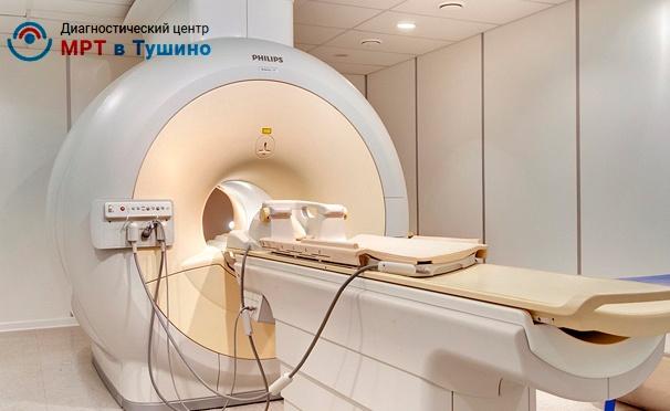 Скидка на МРТ на томографе Philips Achieva в центре диагностики «МРТ Тушино». Скидка до 80%