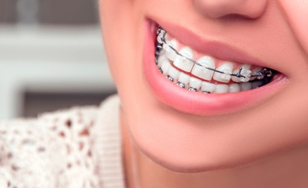 Чистка зубов или брекеты